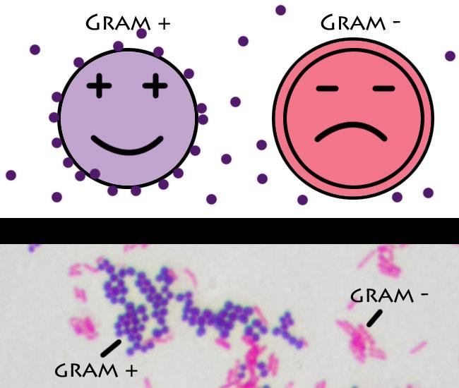 Gram Positive vs Negative
